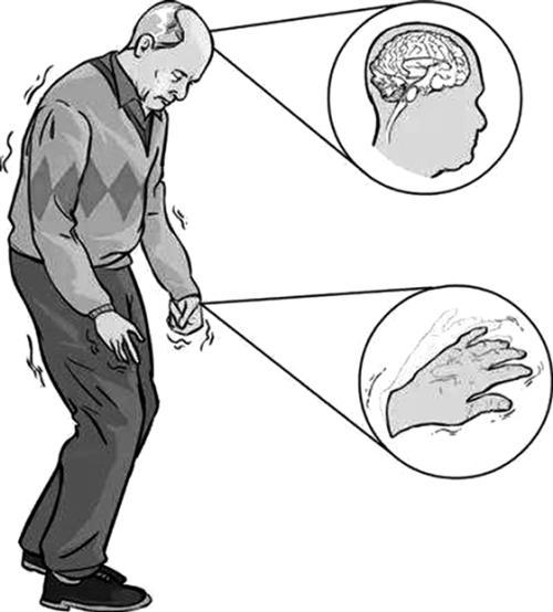 重复经颅磁刺激治疗帕金森病的研究进展