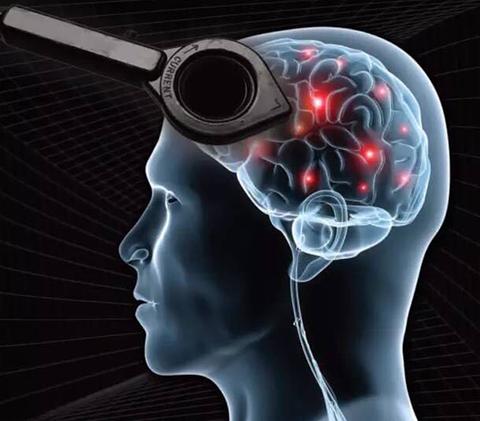 经颅磁 如何避免癫痫带给我们的伤害